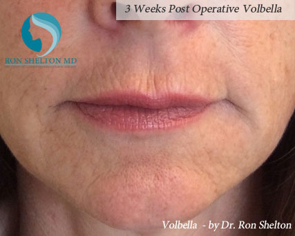 3 Weeks Post Operative Volbella