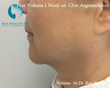 Post Voluma 1 Week on Chin Augmentation