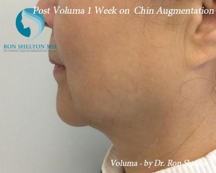 Post Voluma 1 Week on Chin Augmentation