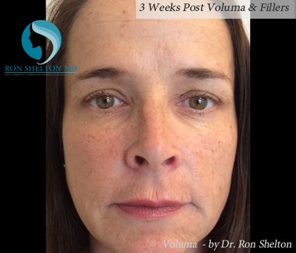 3 Weeks Post Voluma & Fillers
