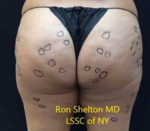 Image of Dr Ron Shelton marking the cellulite