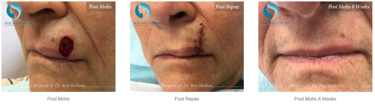 Photos of Before & After Mohs Treatment by Dr Ron Shelton
