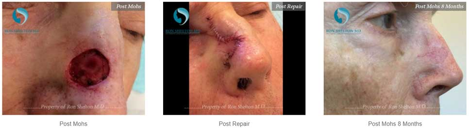 Before after treatment results of Mohs Surgery