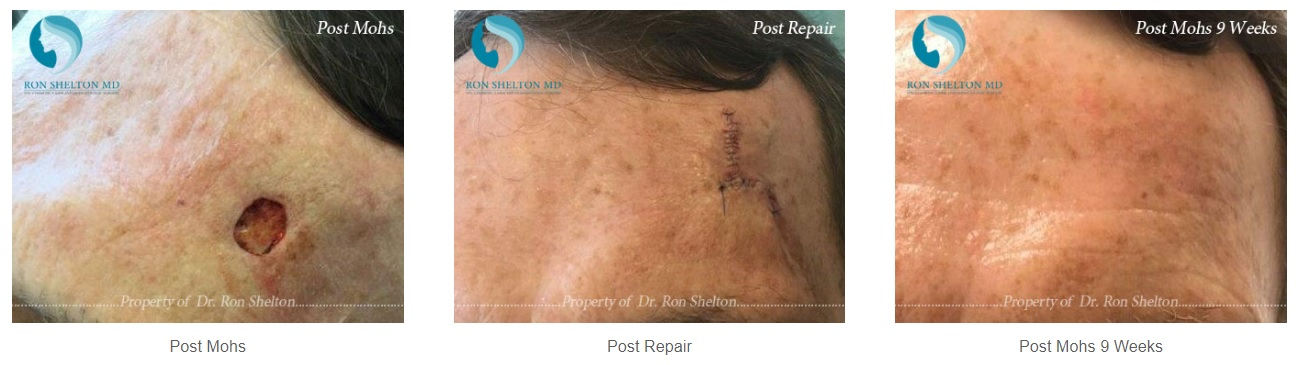 Photos of Mohs before and after treatment by Dr Ron Shelton