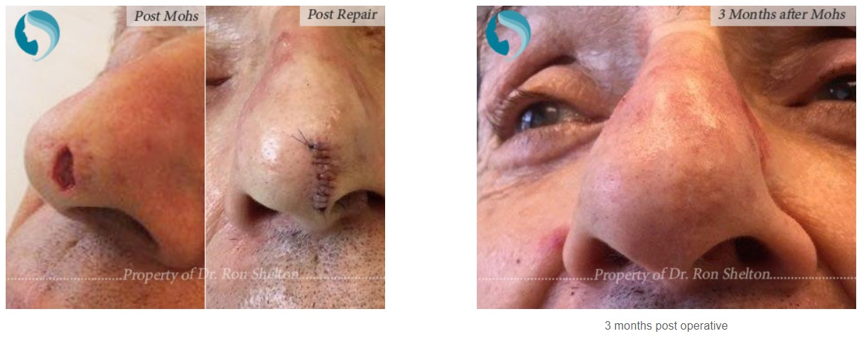 Post operative photos of Mohs surgery in NYC