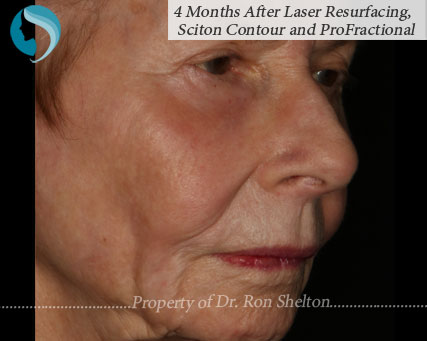 photo of 4 Months After Laser Resurfacing, Sciton Contour and Profractional