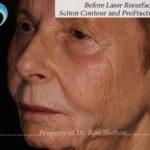 Photo of before laser resurfacing