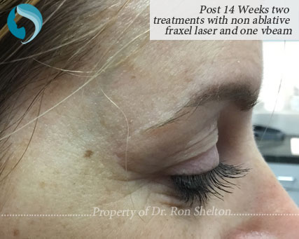 Post 14 Weeks two treatments with non ablative fraxel laser and one vbeam
