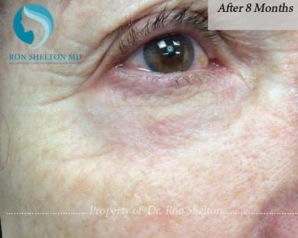 Melanoma Repair after 8 Months