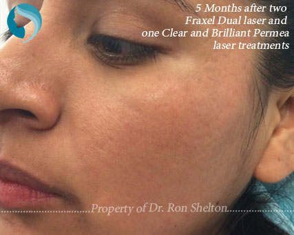 5 Months after Two treatments with Fraxel Restore/Dual laser and one Permea