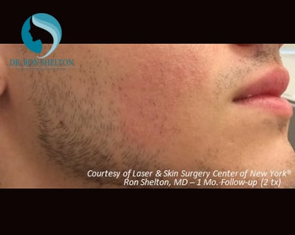 After two Fraxel Restore - Dual laser treatments for Acne