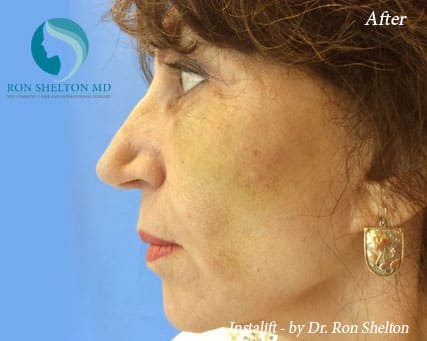 After Silhouette InstaLift Suture lift for Cheek Augmentation