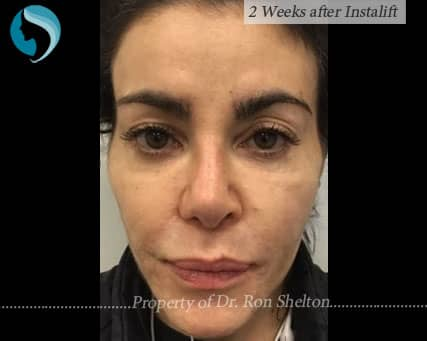 2 Weeks after Silhouette InstaLift Suture Lift for Cheek Augmentation