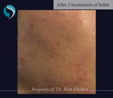 After Two Treatments of Infini Microneedling