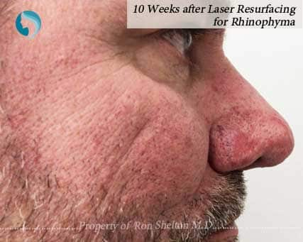 10 Weeks after Laser Resurfacing of Rhinophyma