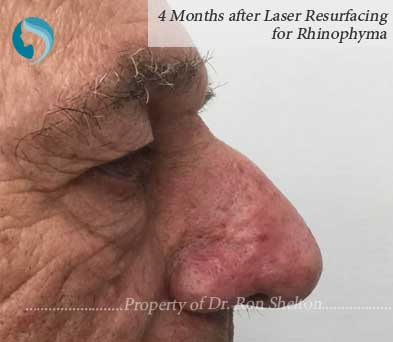 4 Months after Laser Resurfacing for Rhinophyma