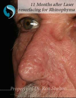 11 Months after Laser Resurfacing for Rhinophyma