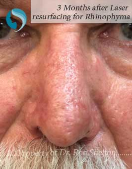 3 Months after Laser Resurfacing for Rhinophyma