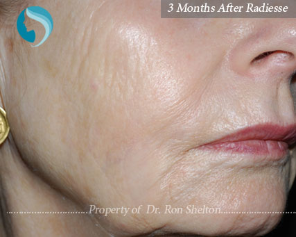 3 months after Radiesse used for lines on lower face