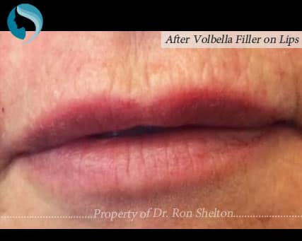 Post operative Volbella immediate results