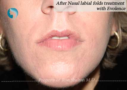 After nasal labial folds treatment with Evolence