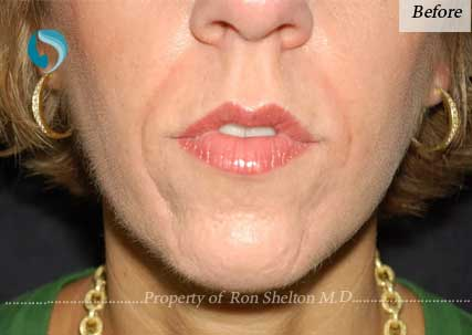 Before wrinkle treatment