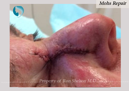Mohs Repair by Dr Ron Shelton, NYC