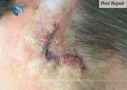 Mohs Repair by Dr Ron Shelton