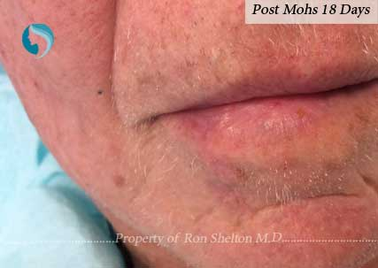 Post Mohs results after 18 days