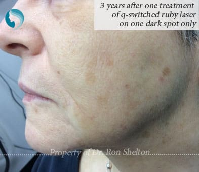 3 Yrs after one q-switched Ruby Laser treatment only on one dark spot
