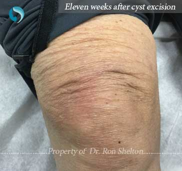 11 weeks after excision
