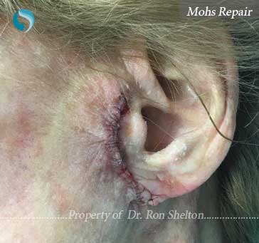 Mohs Repair by Dr Shelton, NYC