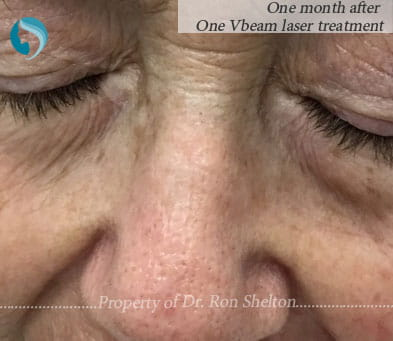 One month after one Vbeam laser treatment