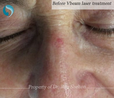 Before Vbeam laser in NYC