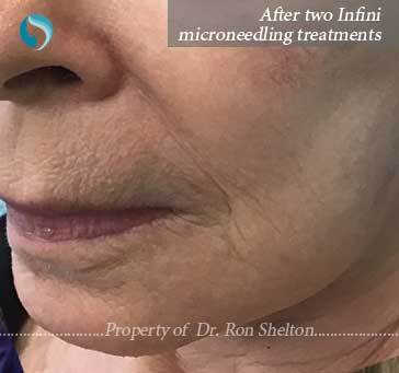 After two treatments of Infini Microneedling NYC