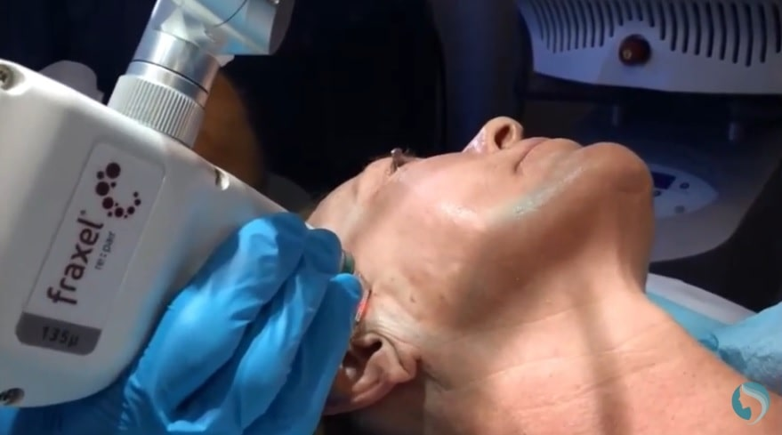 NYC fraxel laser treatment