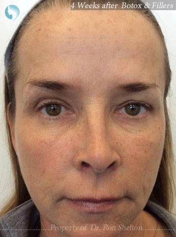 After Botox and Fillers