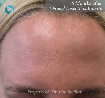 6 months after 4 fraxel lasers