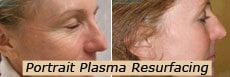 Plasma resurfacing