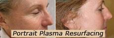 Plasma resurfacing
