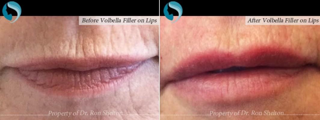 volbella for lip volume NYC