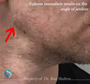 Voluma immediate results on the angle of jawline