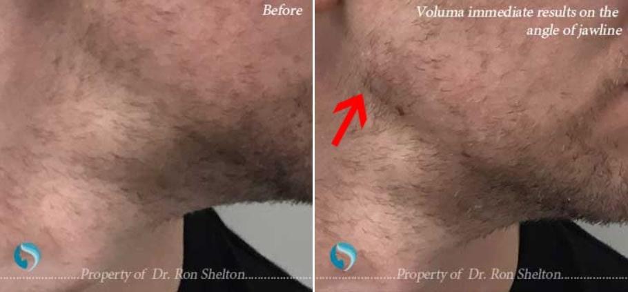 Voluma to improve the jawline