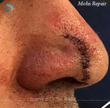 Mohs Repair NYC