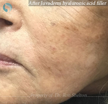 After Juvederm hyaluronic acid filler