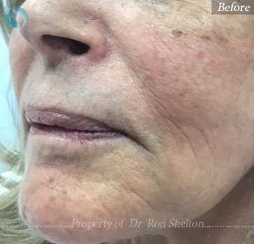 Before Juvederm filler