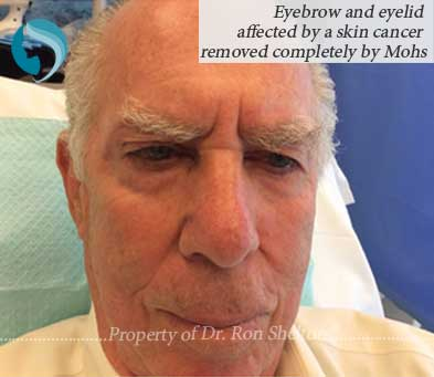 Eyebrow and eyelid affected by a skin cancer removed completely by Mohs