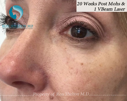 Post Mohs 20 Weeks and after One VBeam laser