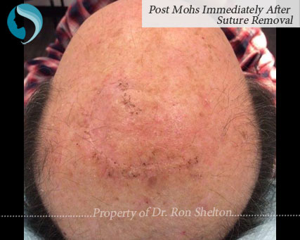 image of Post Mohs Immediately After Suture Removal