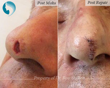 Post Mohs & Repair